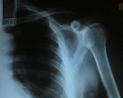 x-ray_020112-01.jpg