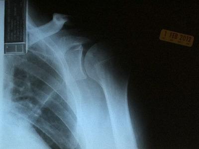 x-ray_020112-02.jpg